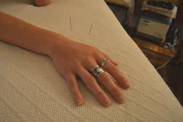 acupuncture_blaizinglotus